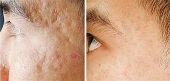microneedling-scars