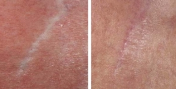 Before and after picture of microneedling scars.