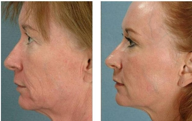 sagging-skin-tightening-with-microneedling